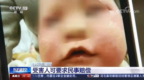 乳児用クリーム使った赤ちゃんに体毛の増加や顔の腫れ―中国 抗菌クリームで乳児の顔肥大疑惑 中国で批判殺到20210210上昌広「日本は中国製ワクチンの導入を検討し選択肢を増やすべき。メンツの問題から検討していな
