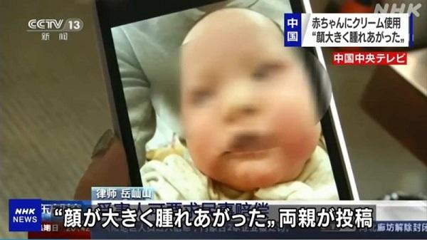 乳児用クリーム使った赤ちゃんに体毛の増加や顔の腫れ―中国 抗菌クリームで乳児の顔肥大疑惑 中国で批判殺到20210210上昌広「日本は中国製ワクチンの導入を検討し選択肢を増やすべき。