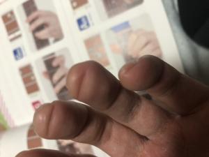 指の凹み具合
