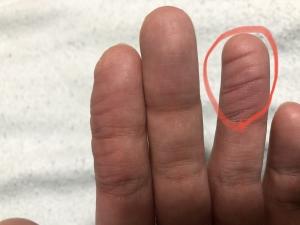 薬指セーハ後の状態