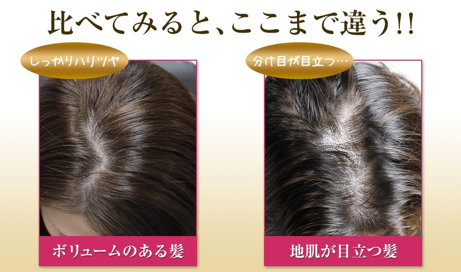 女性用の育毛美容液「ベルタ育毛剤」